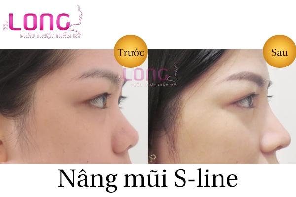 nang-mui-sline-boc-sun-nhan-tao-bao-lau-het-sung-1