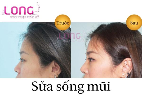 sua-song-mui-bac-si-long-co-an-toan-khong-1