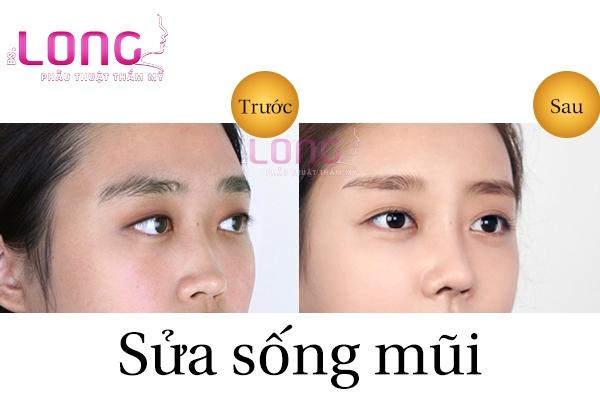 sua-song-mui-cu-gia-bao-nhieu-1