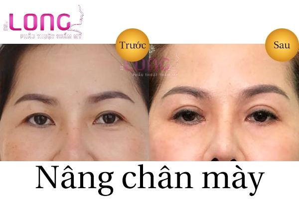 nang-chan-may-gia-bao-nhieu-tien-hien-nay-2