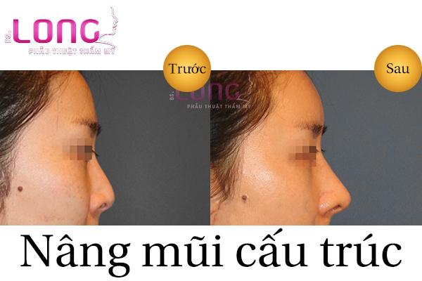 nang-mui-cau-truc-co-vinh-vien-khong-1