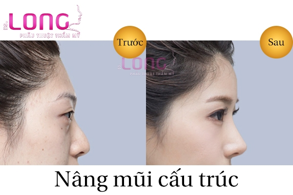 nang-mui-cau-truc-s-line-la-gi-1