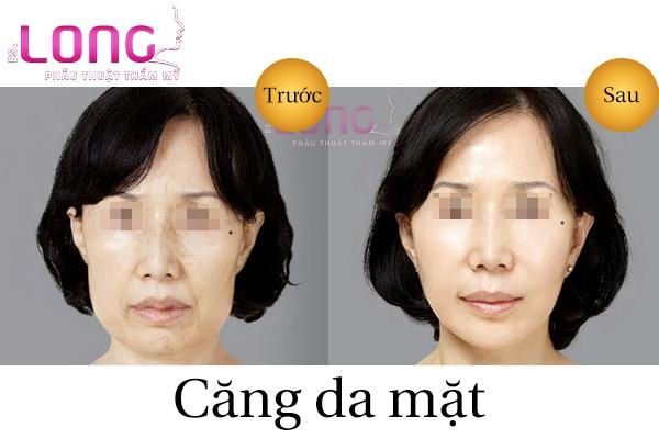 cang-da-mat-tu-nhien-bang-chi-khong-phau-thuat-1