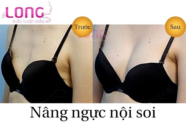 co-nen-chon-cach-nang-nguc-noi-soi-tham-my-hay-khong-1