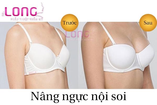 tham-my-nang-nguc-noi-soi-to-qua-co-chay-xe-khong-1