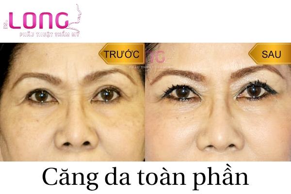 bao-nhieu-tuoi-co-the-cang-da-mat-toan-phan-1