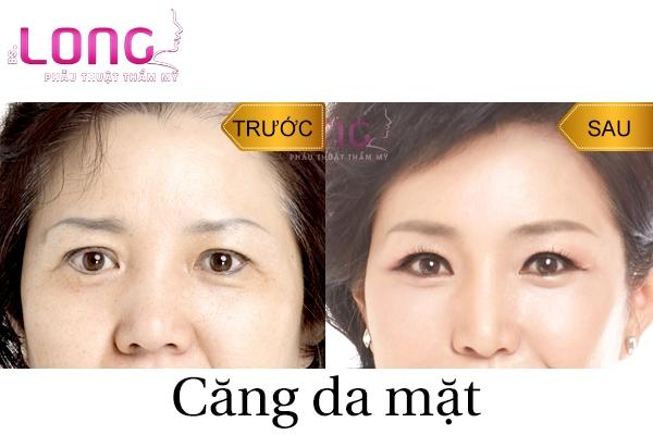 cach-cang-da-mat-tai-nha-khong-phau-thuat-1