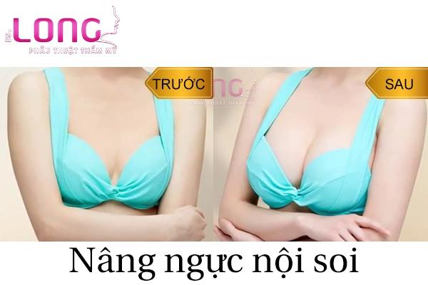 nen-nang-nguc-noi-soi-tui-tron-hay-tui-giot-nuoc-1