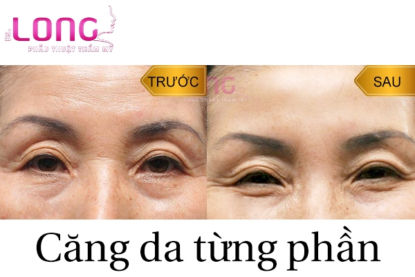 nen-cang-da-tung-phan-bang-chi-hay-phau-thuat-1