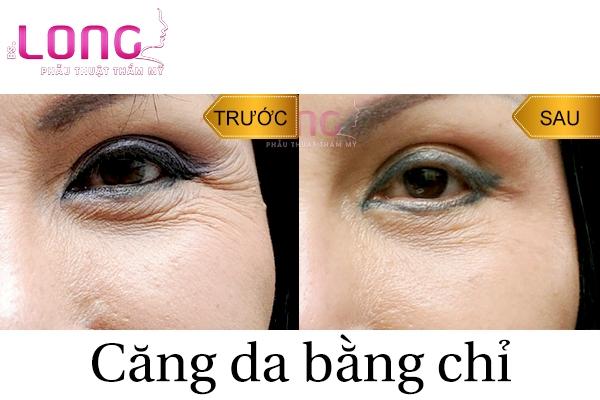 uu-diem-khi-cang-da-mat-bang-chi-bac-si-long-1
