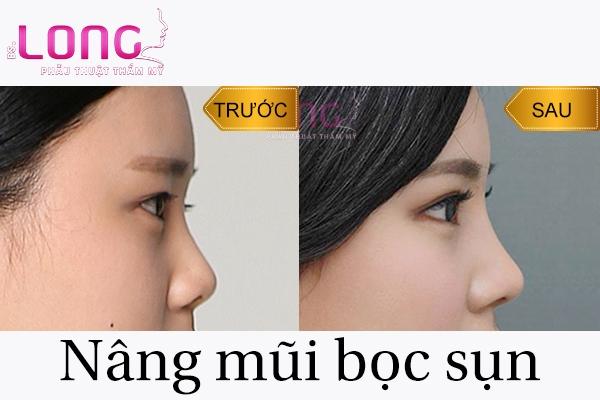 nang-mui-boc-sun-nhan-tao-co-an-toan-khong-1