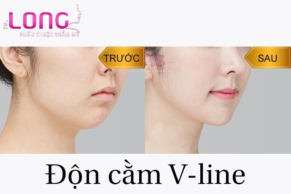 phau-thuat-don-cam-vline-xong-co-dau-khong-1