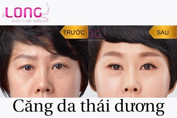 co-bao-nhieu-cach-cang-da-vung-thai-duong-1