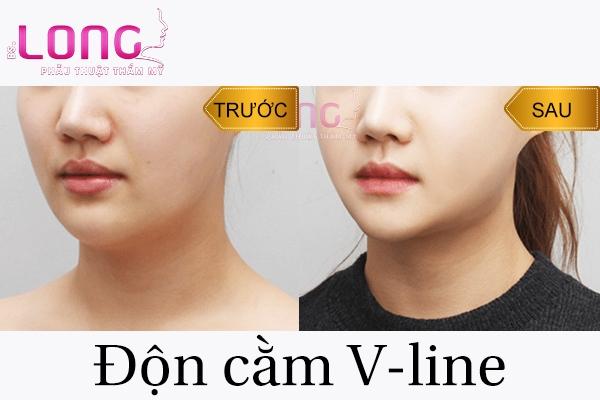 don-cam-vline-co-bi-bien-chung-gi-khong-1