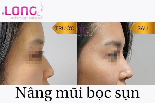 nang-mui-boc-sun-nhan-tao-co-su-dung-vinh-vien-khong-1