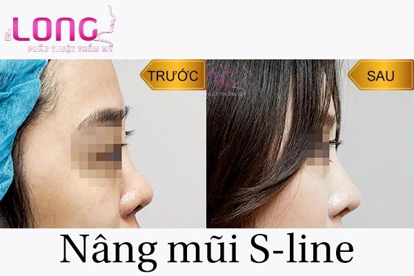 phau-thuat-nang-mui-s-line-co-dau-khong-1