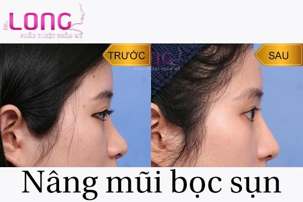 gia-nang-mui-boc-sun-tu-than-co-dat-khong-1
