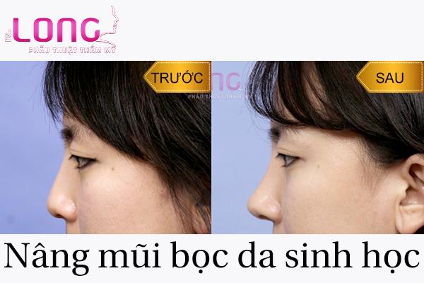 nang-mui-boc-da-sinh-hoc-la-gi-1