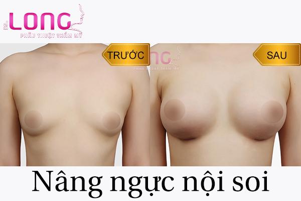 nang-nguc-noi-soi-co-uu-diem-gi-so-voi-phuong-phap-truyen-thong-1