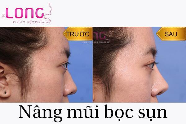 nang-song-mui-xong-co-duoc-deo-kinh-khong-1