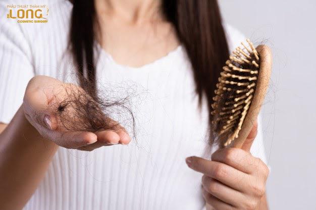 PRP - Phương pháp điều trị rụng tóc hiệu quả an toàn